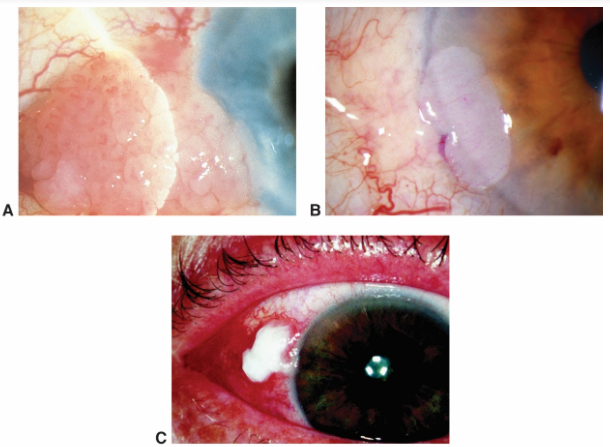 Conjunctival intraepithelial  neoplasia. A. Papilliform. B. Gelatinous. C. Leukoplakic  Conjunctival and corneal intraepithelial tumor (CIN)
